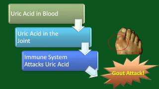 YouTube Video: Gout: A Disease Overview