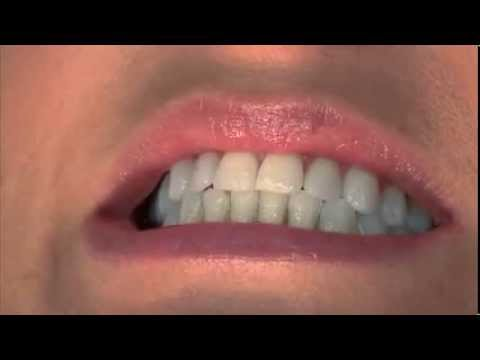 جلسات الفلورايد لتقويه الأسنان و حمايتها من التسوس Fluoride Varnish Application