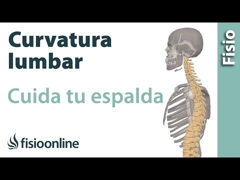 La escoliosis de la columna vertebral el complejo de los ejercicios