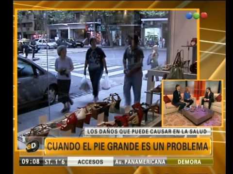 Cuando el pie grande es un problema - Telefe Noticias