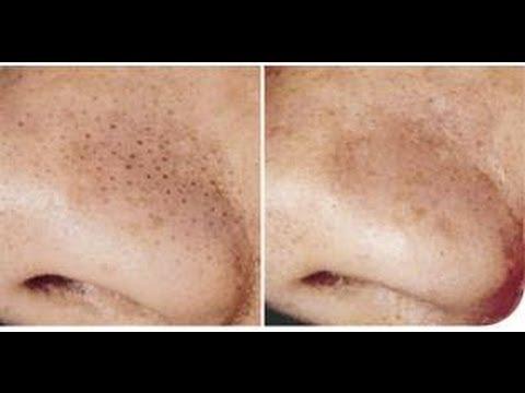 Affronti il pacco per la pelle combinata