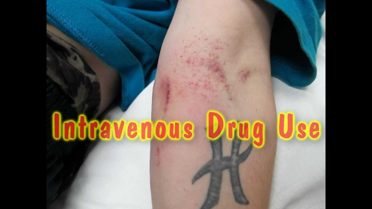 Soft Tissue Infections Among Injection Drug Users --- San ...