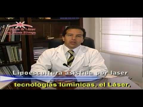 Lipoescultura asistida por Láser