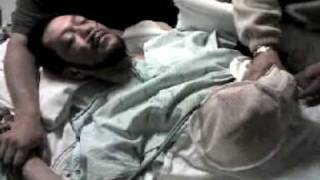 Alcohol Withdrawal Seizure, Delirium Tremens