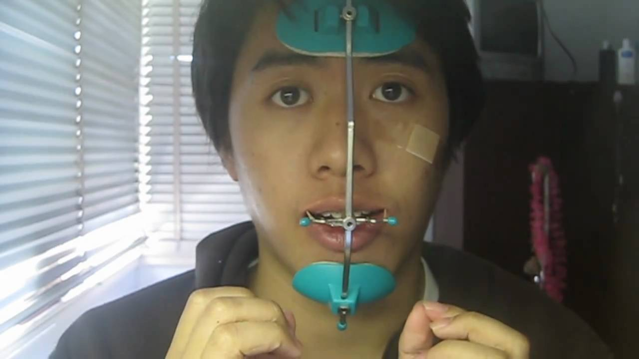 Getting Braces  Wearing A Face Mask And How To Put It On