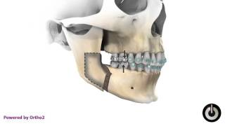 Mandibular Advancement (Overbite Class II)