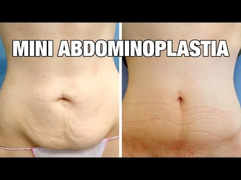 Mini Abdominoplastia antes y después | Testimonio Cristina