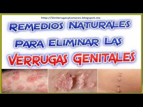 Como Quitar Verrugas Genitales De Cualquier Parte