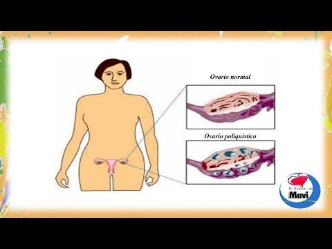Remedios caseros para ovarios poliquisticos - Sindrome de ovario poliquistico tratamientos naturales