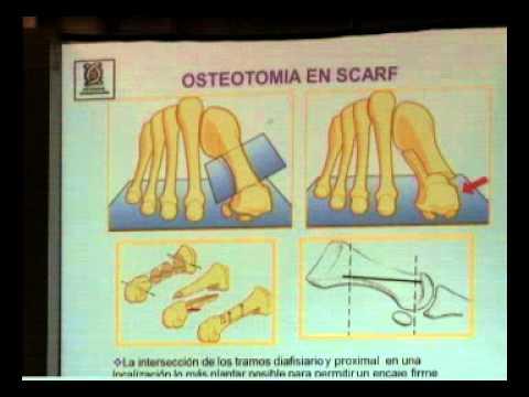OSTEOTOMIA DE SCARF/ DRA PATRICIA PARRA/ dvd31 2