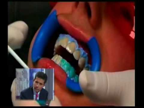 Clinica Dental Cuevas: Blanqueamiento dental ( 1ª Parte)