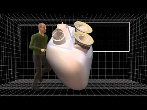 First artificial heart implant offers new hope to patients with heart diseases