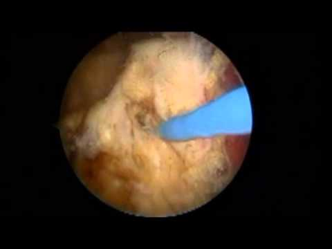 Piriformis syndrome surgery / sciatic nerve surgery