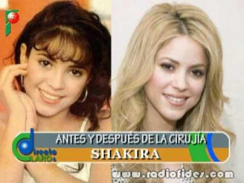 famosas Latinas antes y despues de la cirugia