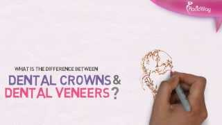 Watch Video Dental Crowns vs. Dental Veneers Difference