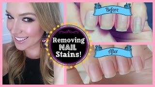 DIY: How To Remove Stains From Your Nails
