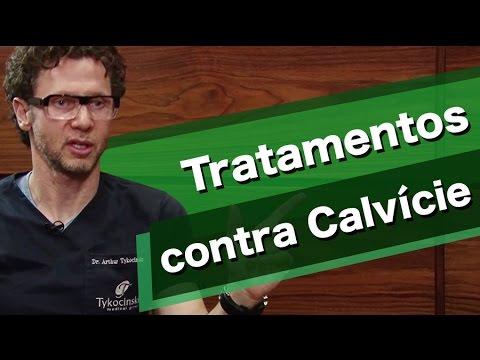 Quais os tratamentos contra a calvície?