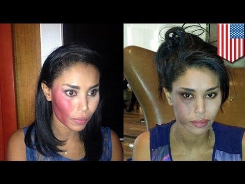 V. Stiviano, novia de Donald Sterling, es golpeada en un taxi en Nueva York, atacante arrestado