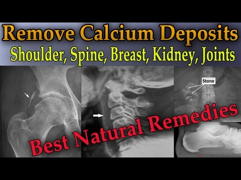 Remove Painful Calcium Deposits From Your Body (3 Best Home Remedies) - Dr Mandell