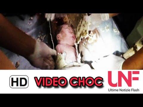 Bambino cinese estratto vivo dai tubi di scarico