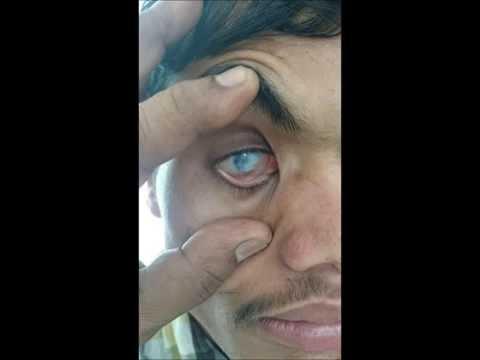 Acupuncture for Blind eye. Prof Dr Sir Anton Jayasuriya's Method of Acupuncture