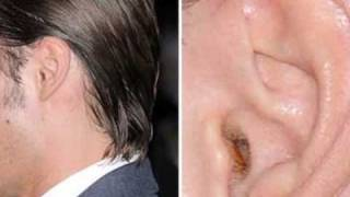 Zac Efron Ear Wax Problem