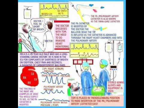 The New Nurse Hemodynamic Monitoring Youtube