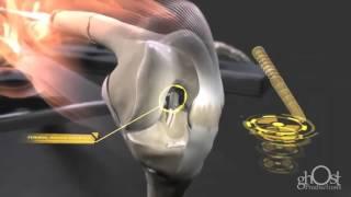 Cómo se repara una fractura de huesos