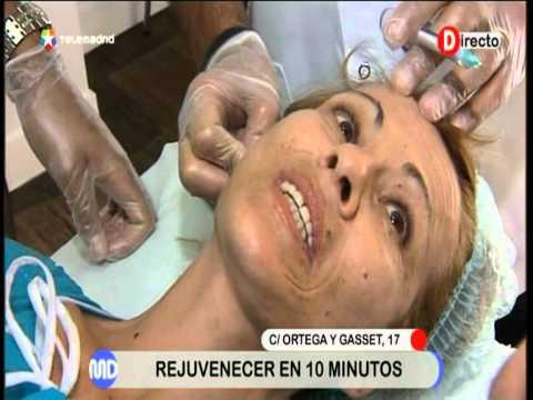 Nueva técnica de lifting sin cirugía en Madrid Directo