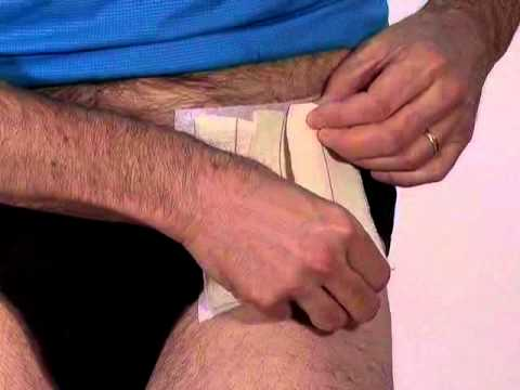 can tight hip flexors purpose shin splints