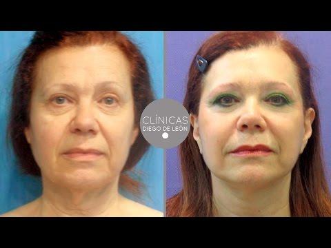 Lifting Facial antes y después   Experiencia Lola