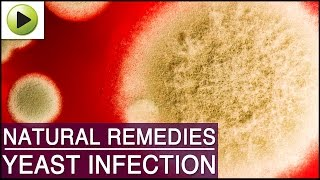 Yeast Infection Natural Ayurvedic Home Remedies