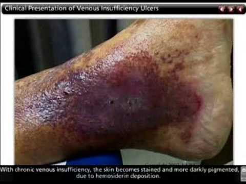 Venous Leg Ulcers - Lesson Clip