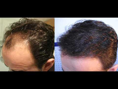 INJERTO CAPILAR - HAIR TRANSPLANT (20 meses Post-operatorios)