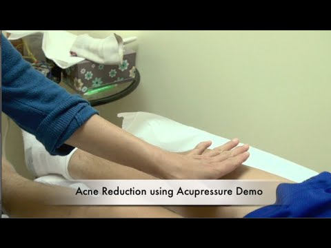 Acne Reduction Demo