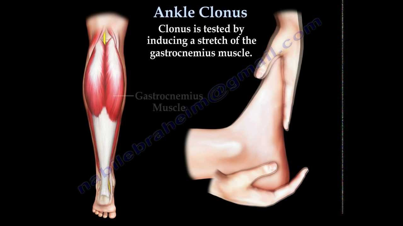 Ankle Clonus Everything You Need To Know Dr Nabil