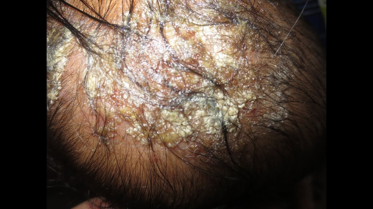 Ringworm, Scalp (Tinea Capitis) Condition, Treatments, and ...