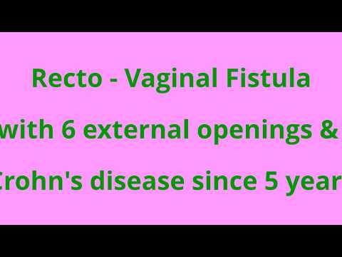 Recto - Vaginal Fistula with Crohn's disease