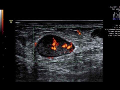 hqdefault jpgInguinal Lymphadenopathy