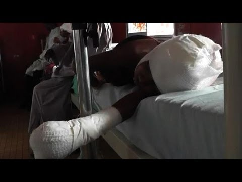 Children attacked in C.Africa Rep. by Antibalaka militias