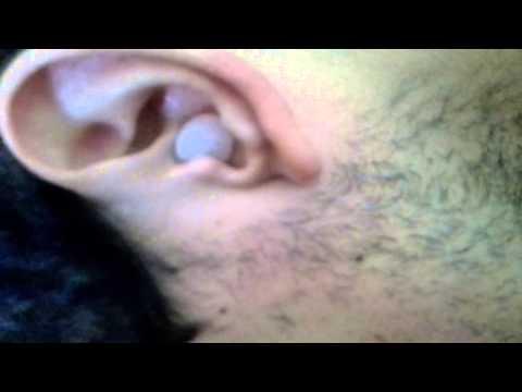 Cómo destapar los oidos con agua oxigenada?