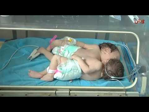 ولادة توأمين سياميين بقلب واحد في الخليل