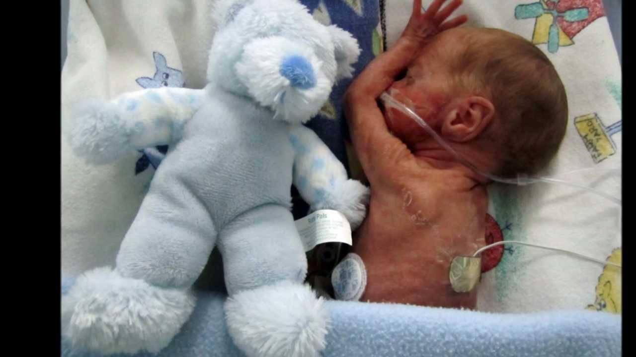 24 Week Preemie - Christiaan Brink: Jou eerste jaar - YouTube