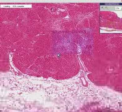 Histopathology heart mural thrombus infarct youtube for Mural thrombus aorta