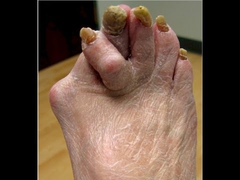 Hookup a girl with ugly feet