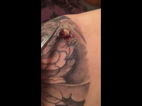 Infected abscess on tattoo youtube for How to know if a tattoo is infected