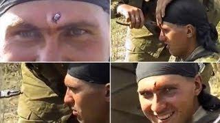 Peluru AK47 Melubangi Kepalanya, Tentara Ini Masih Bisa Tersenyum