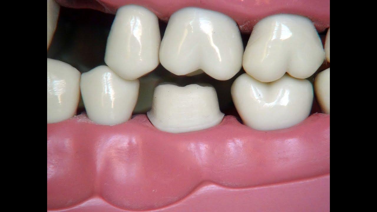 Full Metal Crown Preparation For Dental Students Youtube