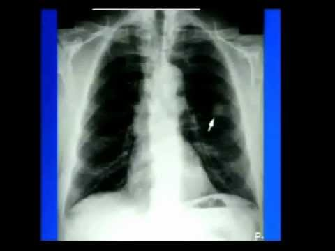 mri in lung cancer a pictorial essay