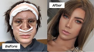 My plastic surgery in Korea experience! (part 2)